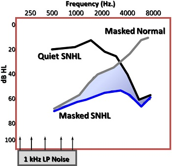 Normal Hearing Threshold Levels in the Low